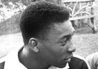 Rei fora?: Com uma distensão nos ligamentos, por pouco Pelé não ficou de fora do Mundial